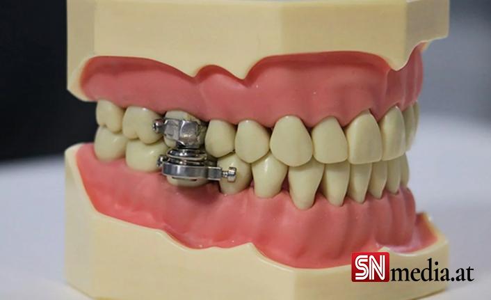 Boğazını tutamayana ağız kapatan çözüm: Manyetik çene kilidi