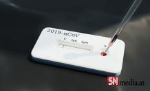 Uzmanlar açıkladı: Sars-CoV-2 virüsü devamlı kalacak