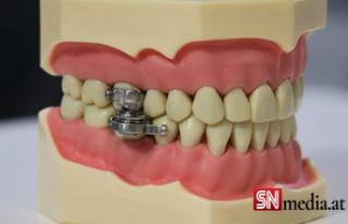 Boğazını tutamayana ağız kapatan çözüm: Manyetik...